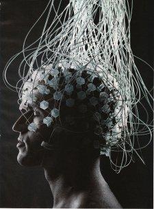 Scan Otak